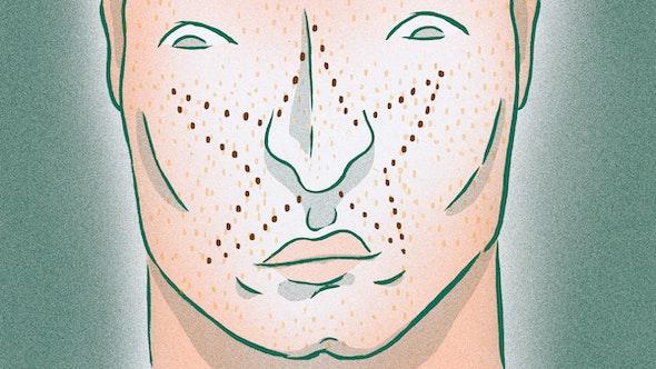 wtomf-freckles_4