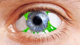 eye_gunk
