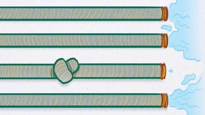 hose-knot
