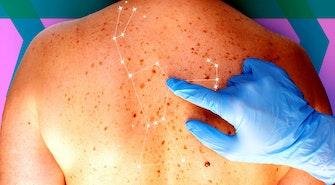 skin_spots
