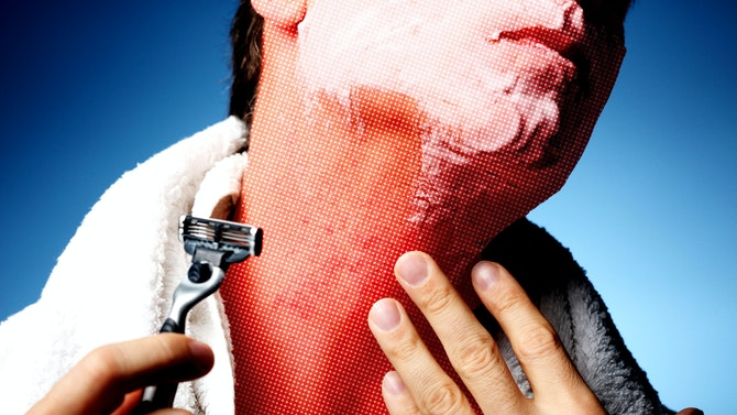 Razor Bumps: What They Are & How to Get Rid of Them | Dollar