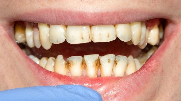 Bad_Teeth