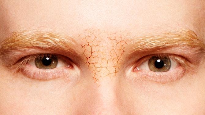 Dry_Skin_Eyes