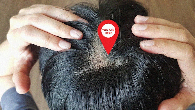 How-to-Keep-Your-Scalp-Top-Of-Mind