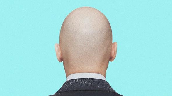 Can-I-Still-Get-Dandruff-If-I'm-Bald